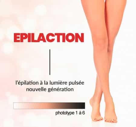 categorie Epilaction 16 - Nos technologies